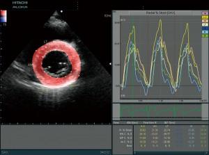 Сердце, короткая ось левого желудочка