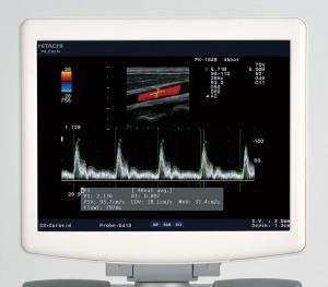 Медицинский монитор высокого качества <br />