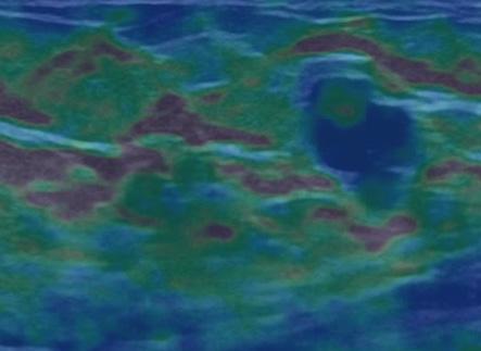 Общая радиология